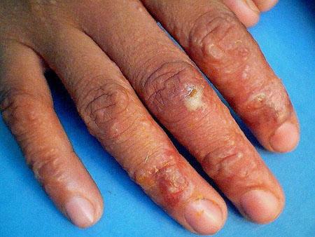 Crema da eczema su mani nonormonali
