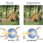 astigmatismo 2